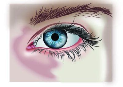 Sherry - Eye exercise
